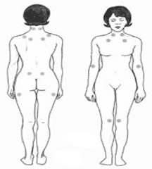 Fibromyalgia Tender Point Areas