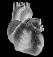 Heart failure is a condition in which cardiac output does not meet the body's needs.